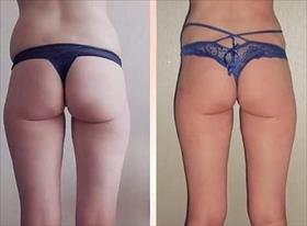 До и после. Антицеллюлитный массаж